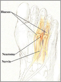 neuromas01 (1)
