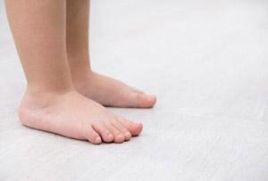 pies planos en niños